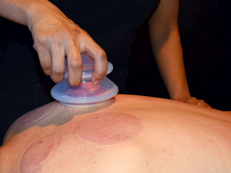 Manually Cupping On Back